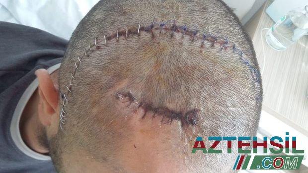 Başından yaralansa da, döyüşə davam edən, bədənində 79 qəlpə gəzdirən qazimiz - FOTO