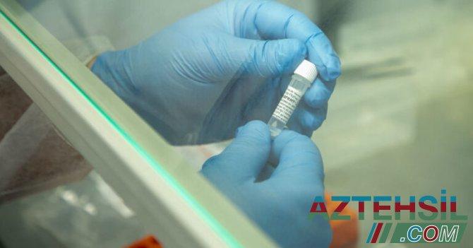 DİQQƏT! Məndə koronavirus varmı? – NECƏ BİLMƏLİ?