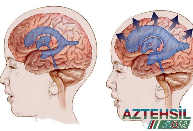 Baş beyin damarlarını təmizləyən təbii metodika