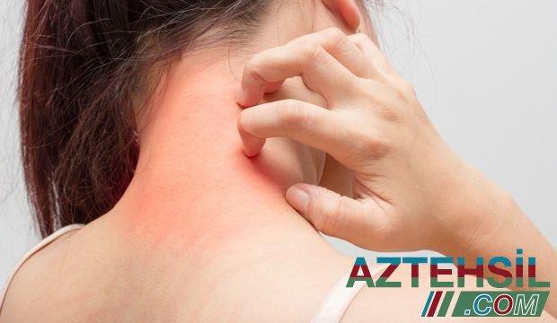 Peyvəndə qarşı allergiya ilə bağlı müraciət hansı halda olmalıdır?